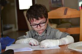 Die Verbände an den Händen schützen William und helfen gleichzeitig, das Zusammenwachsen seiner Finger aufgrund ständiger Wunden und Vernarbung aufzuschieben. Bei Epidermolysis bullosa (EB)- Betroffenen wie Willam können schon kleinste Berührungen zu großen Blasen und Wunden führen. Bei schweren EB-Formen beschränken sich die Verletzungen nicht nur auf die äußere Haut, sondern treten auch an den Schleimhäuten der Augen, im Mund oder in der Speiseröhre auf.