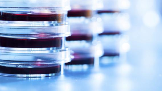 Ein Stapel Petrischalen auf einem Tisch