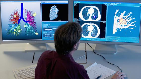 Computerunterstützte Analyse der Lunge basierend auf CT-Bilddaten