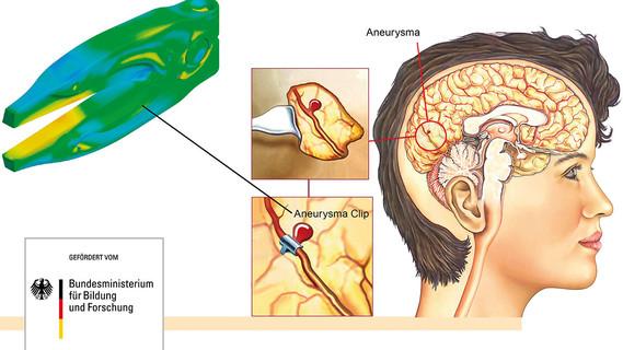 Darstellung Aneurisma