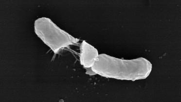 Elektronenmikroskopische Aufnahme einer geplatzten Bakterienzelle nach zweiminütiger Einwirkzeit des Wirkstoffs