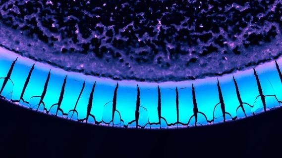 Diese Trocknungsmuster entstehen, wenn Stoffgemische aus flüssigen und winzigen festen Bestandteilen auf oberflächenaktive Substanzen treffen.