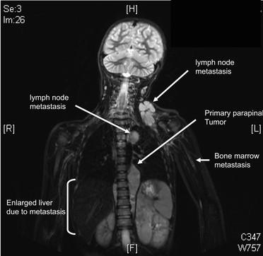 Neuroblastom-Erkrankung