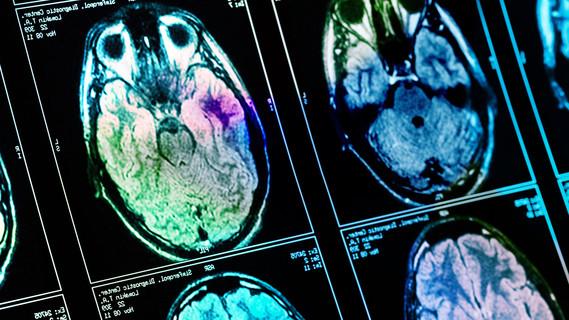 Röntgenaufnahme des Gehirns