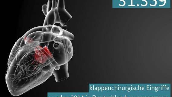 31.359 klappenchirurgische Eingriffe wurden 2014 in Deutschland vorgenommen – meistzum Ersatz von Herzklappen.