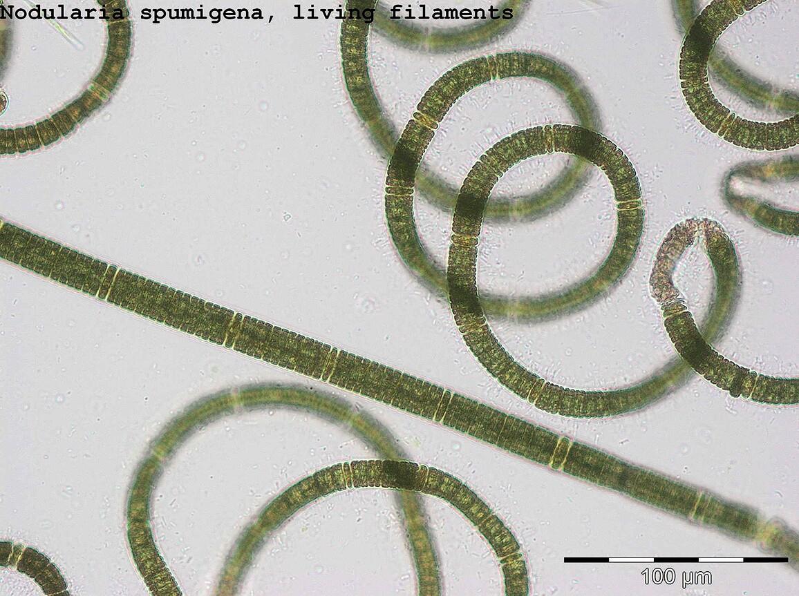 """""""Nodularia spumigena"""" unter dem Mikroskop: Diese Cyanobakterien-Art kommt am häufigsten in der zentralen Ostsee vor."""