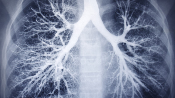 Eine Röntgenaufnahme einer Lunge