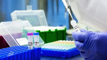 GynTect – Molekulare Diagnostik